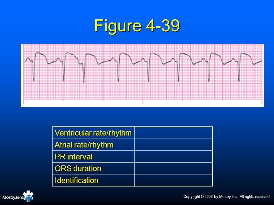 Figure 4-39 Ventricular rate/rhythm Atrial rate/rhythm PR interval