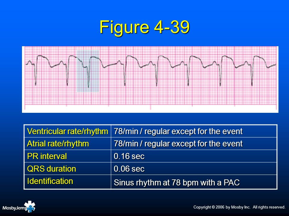 Figure 4-39 Ventricular rate/rhythm
