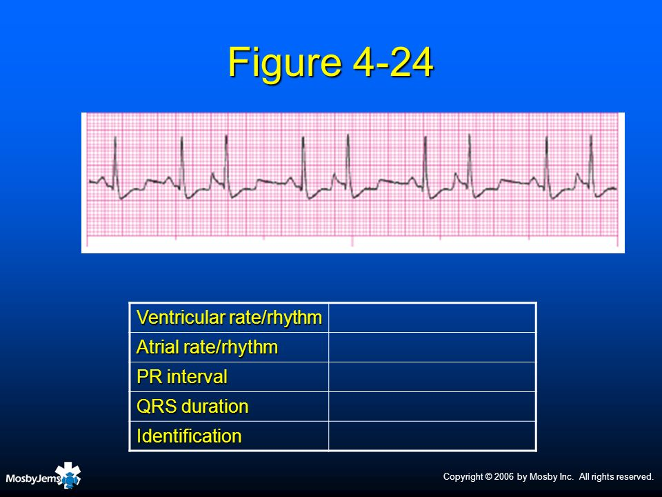 Figure 4-24 Ventricular rate/rhythm Atrial rate/rhythm PR interval