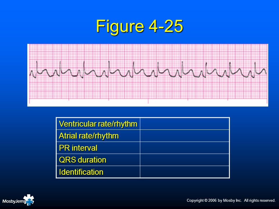 Figure 4-25 Ventricular rate/rhythm Atrial rate/rhythm PR interval
