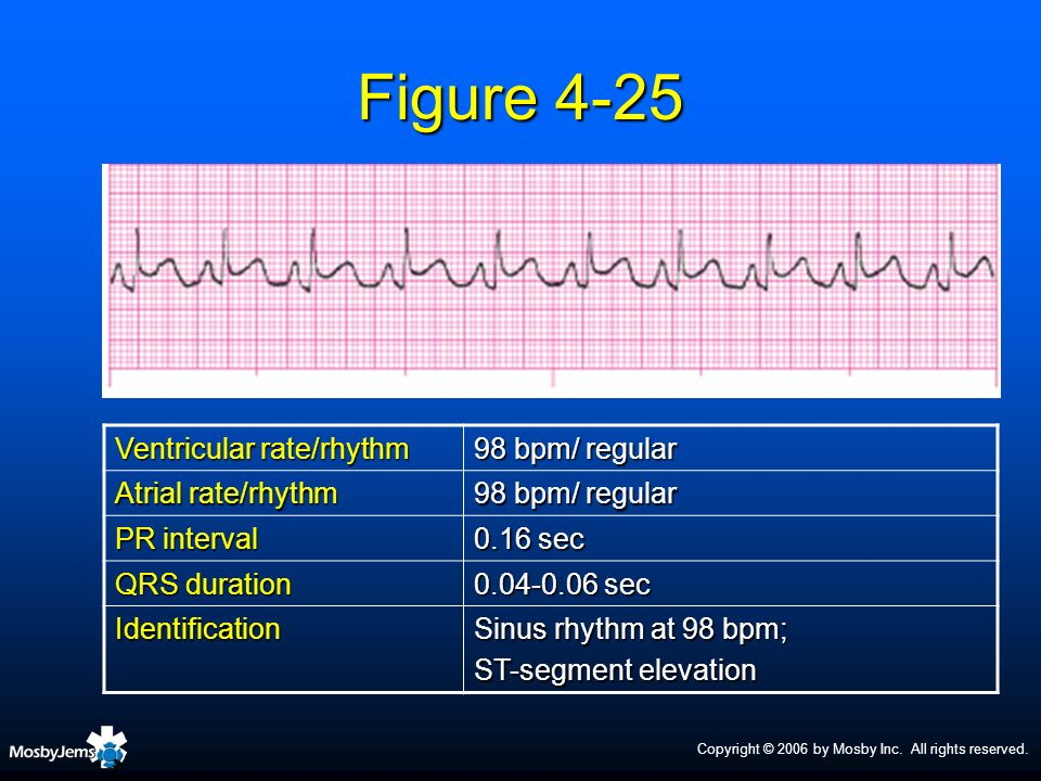 Figure 4-25 Ventricular rate/rhythm 98 bpm/ regular Atrial rate/rhythm