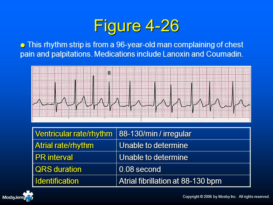 Figure 4-26This rhythm strip is from a 96-year-old man complaining of chest pain and palpitations. Medications include Lanoxin and Coumadin.