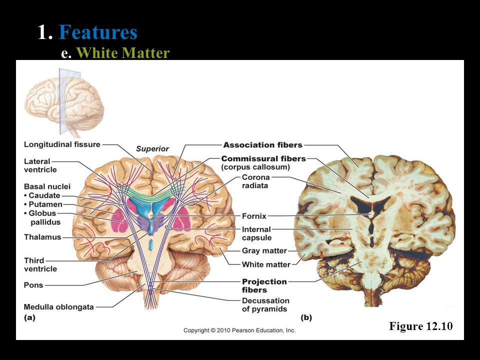 1. Features e. White Matter Figure 12.10