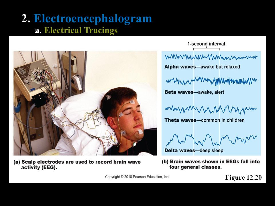 2. Electroencephalogram