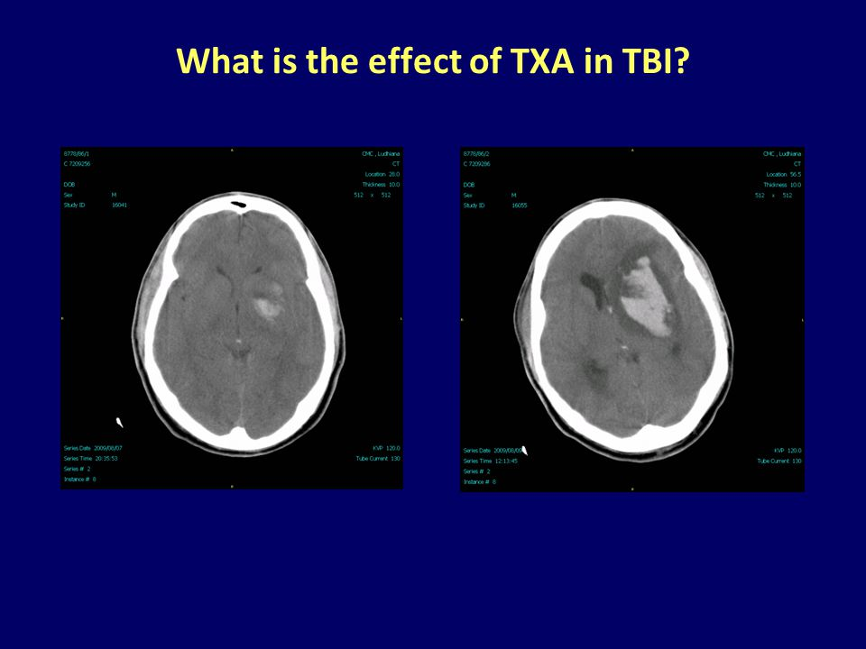 What is the effect of TXA in TBI