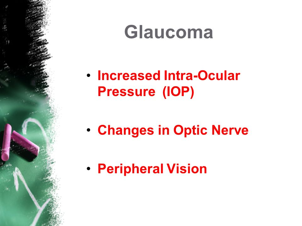 Glaucoma Increased Intra-Ocular Pressure (IOP) Changes in Optic Nerve