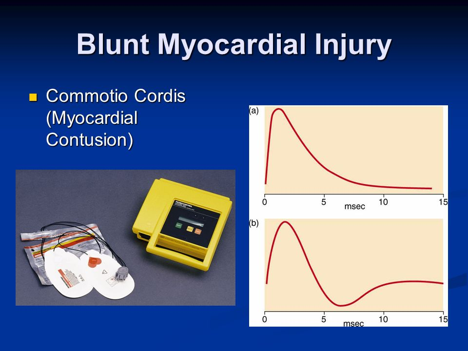 Blunt Myocardial Injury