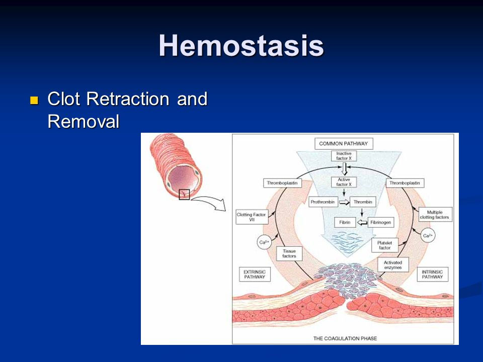 Hemostasis Clot Retraction and Removal