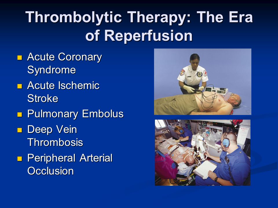 Thrombolytic Therapy: The Era of Reperfusion