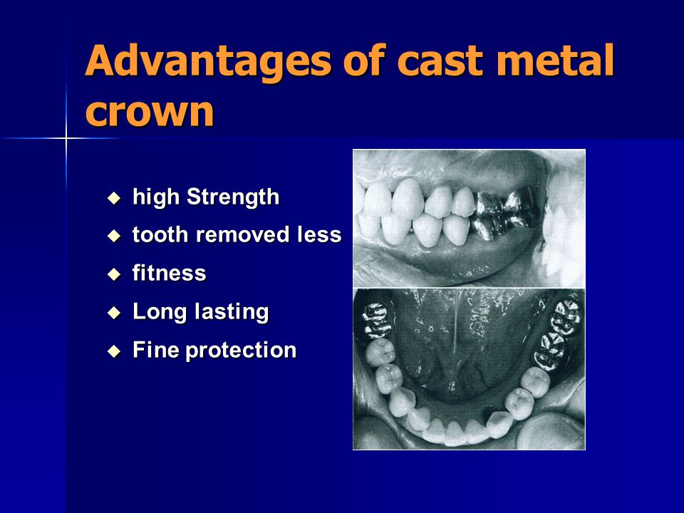 Advantages of cast metal crown