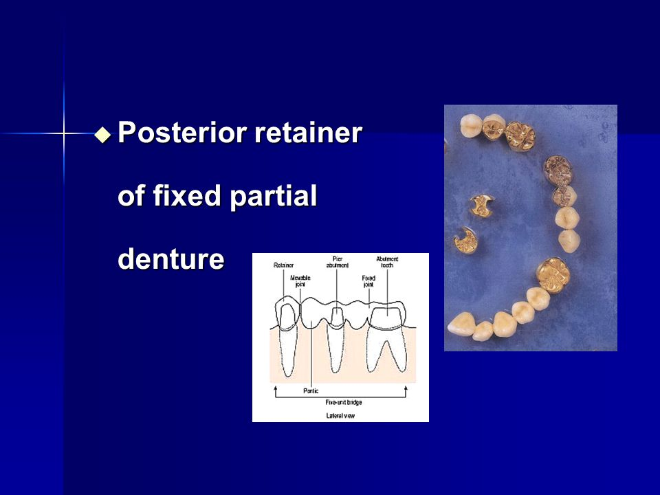 Posterior retainer of fixed partial denture