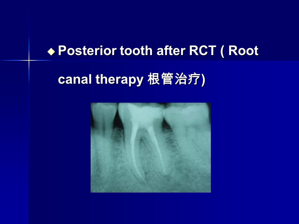 Posterior tooth after RCT ( Root canal therapy 根管治疗)