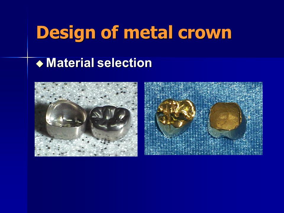 Design of metal crown Material selection
