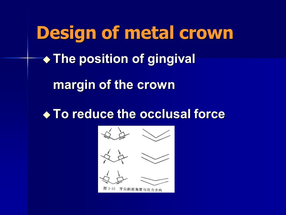 Design of metal crown The position of gingival margin of the crown