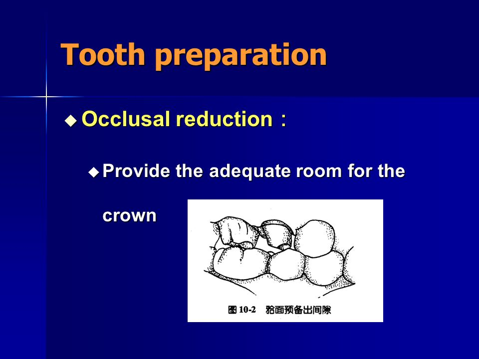 Tooth preparation Occlusal reduction:
