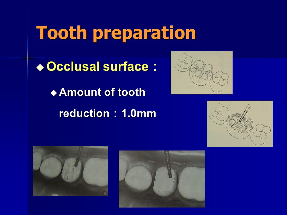 Tooth preparation Occlusal surface: Amount of tooth reduction:1.0mm