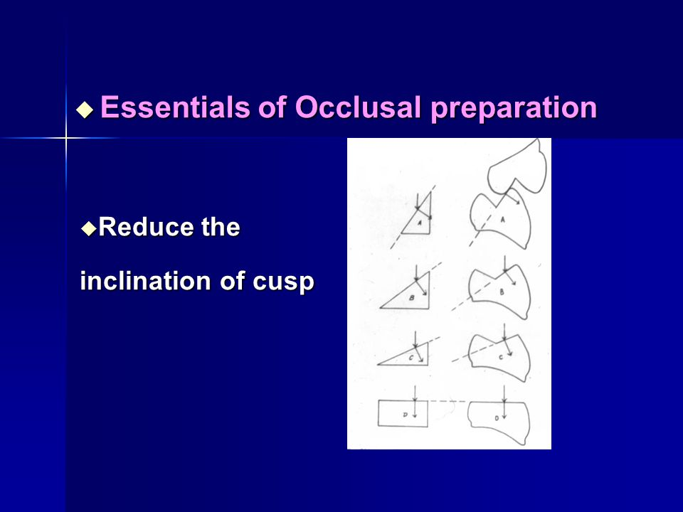 Essentials of Occlusal preparation