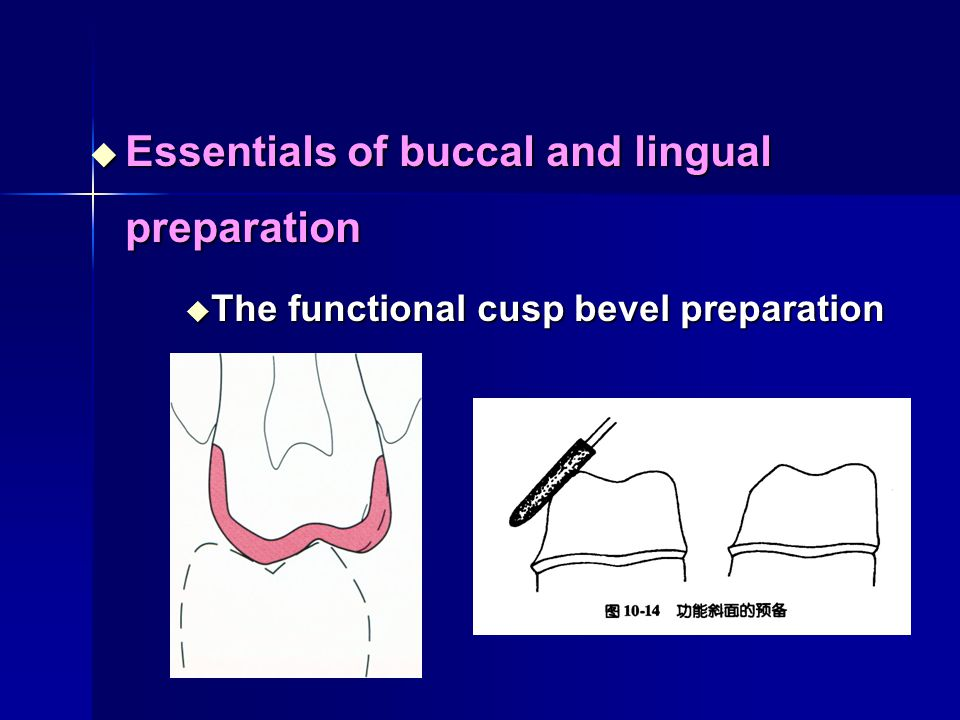 Essentials of buccal and lingual preparation