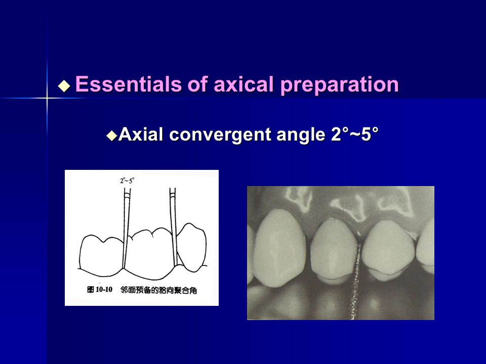 Essentials of axical preparation
