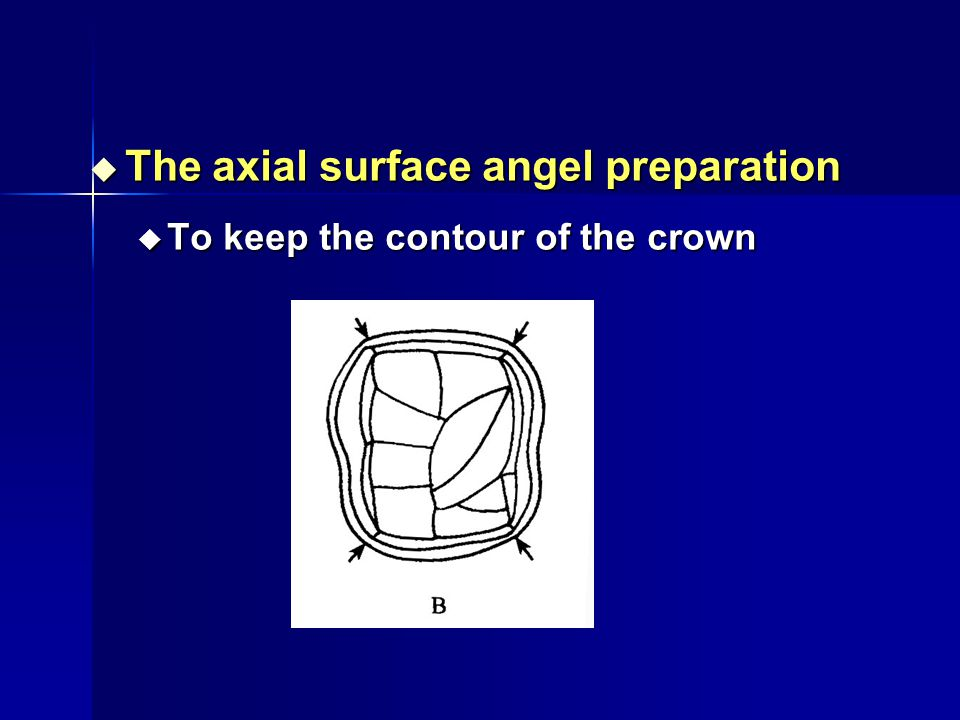 The axial surface angel preparation