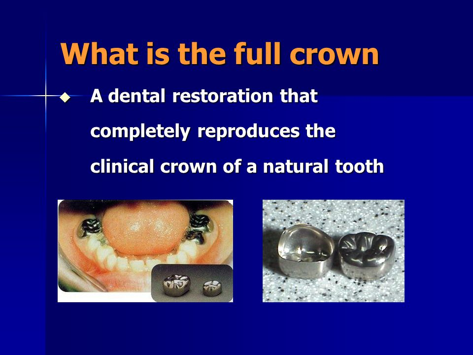 What is the full crown A dental restoration that completely reproduces the clinical crown of a natural tooth.