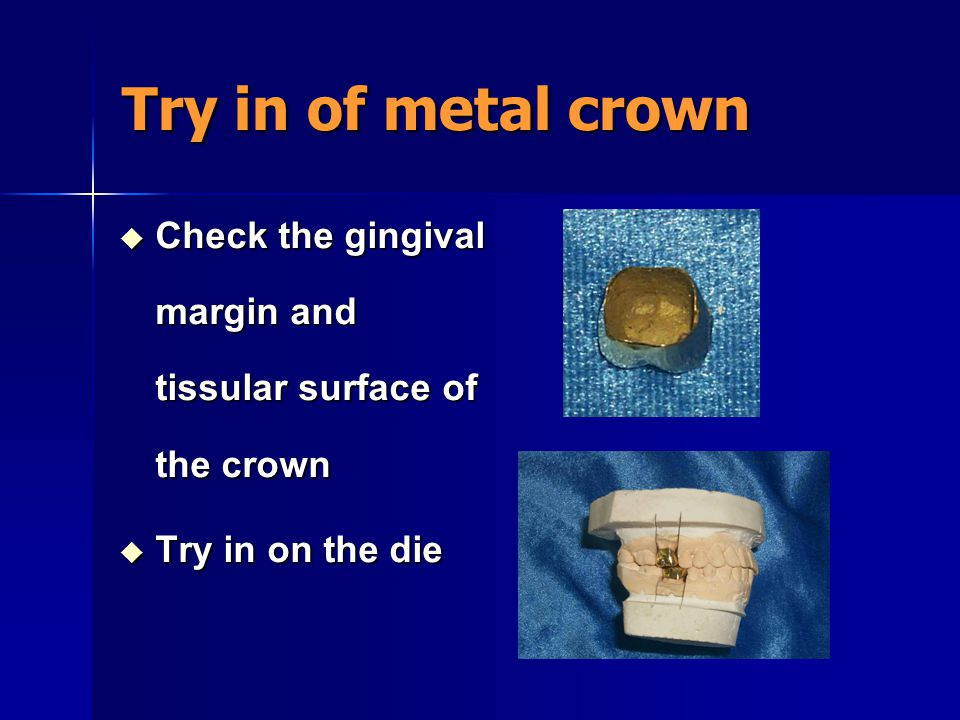 Try in of metal crown Check the gingival margin and tissular surface of the crown Try in on the die
