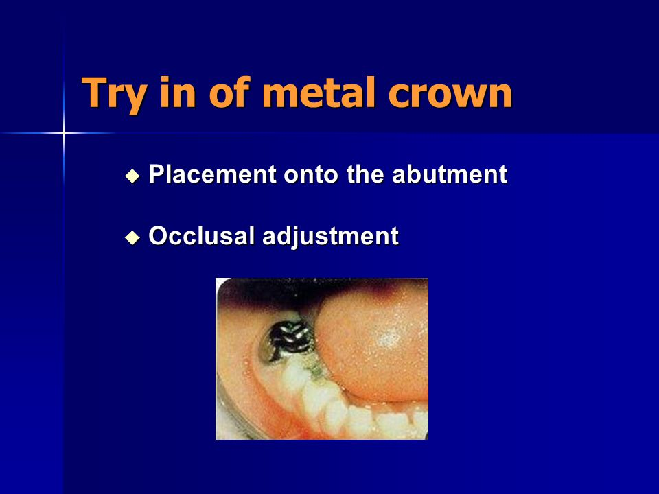 Try in of metal crown Placement onto the abutment Occlusal adjustment
