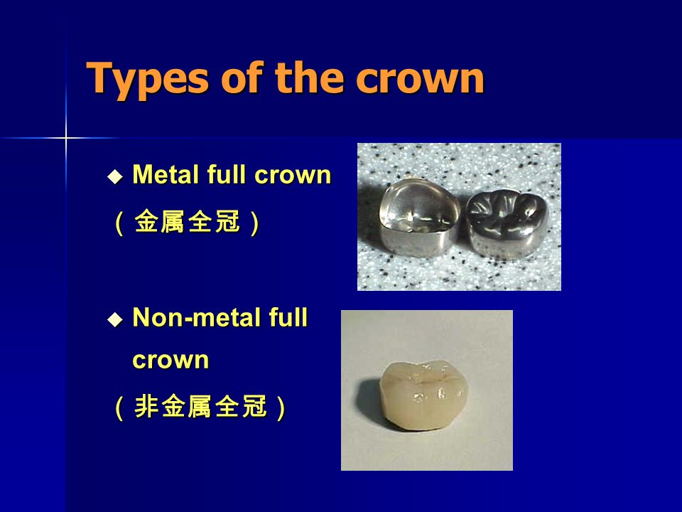 Types of the crown Metal full crown (金属全冠) Non-metal full crown