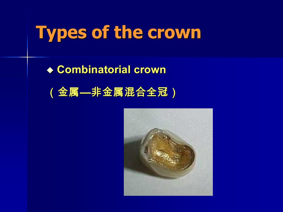 Types of the crown Combinatorial crown (金属—非金属混合全冠)
