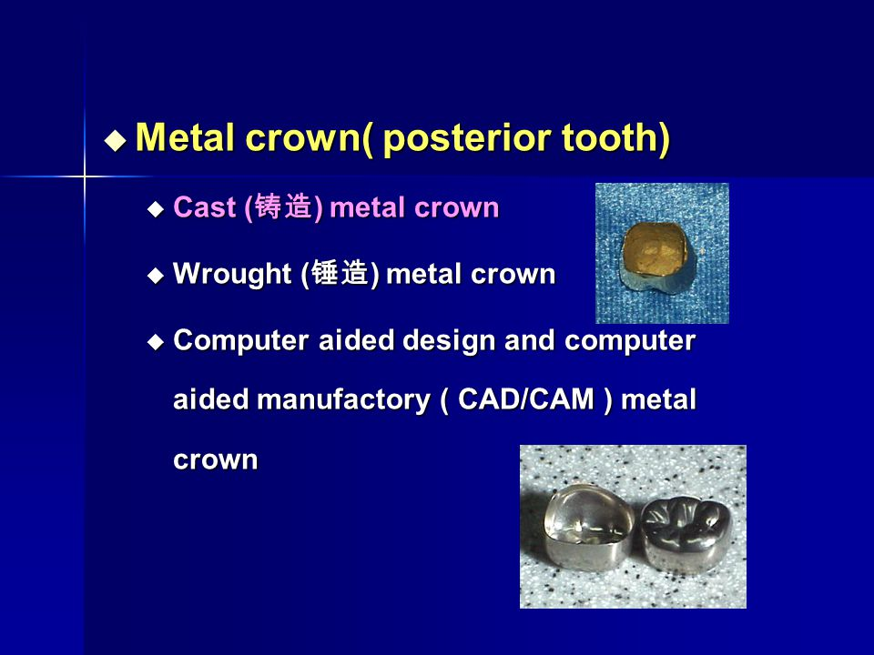 Metal crown( posterior tooth)