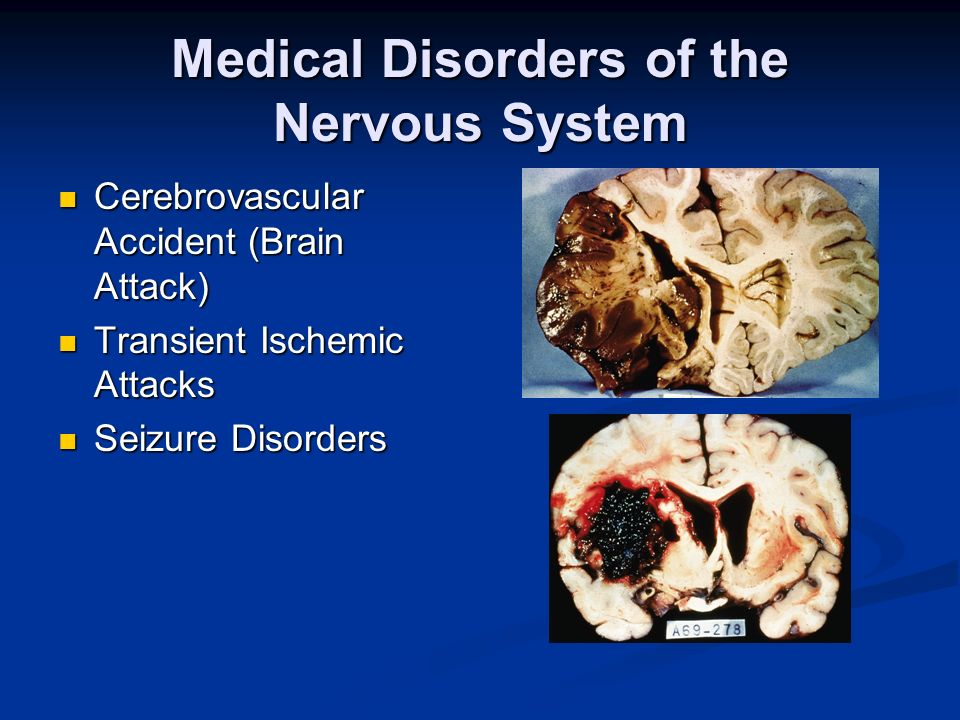 Medical Disorders of the Nervous System