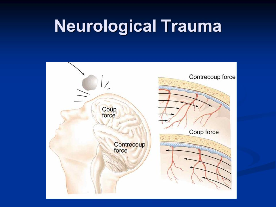 Neurological Trauma