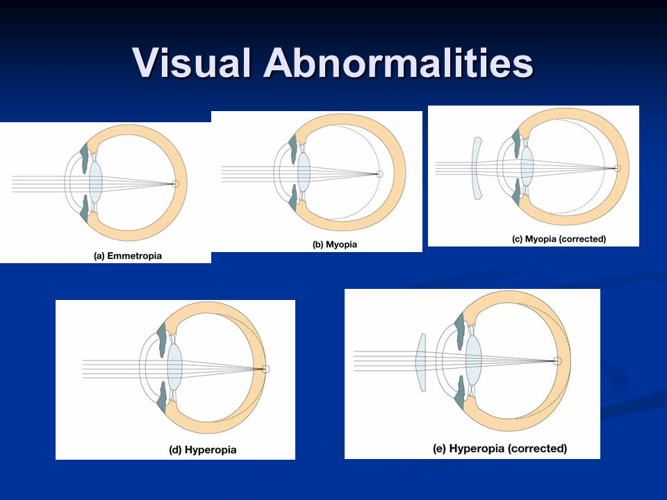 Visual Abnormalities
