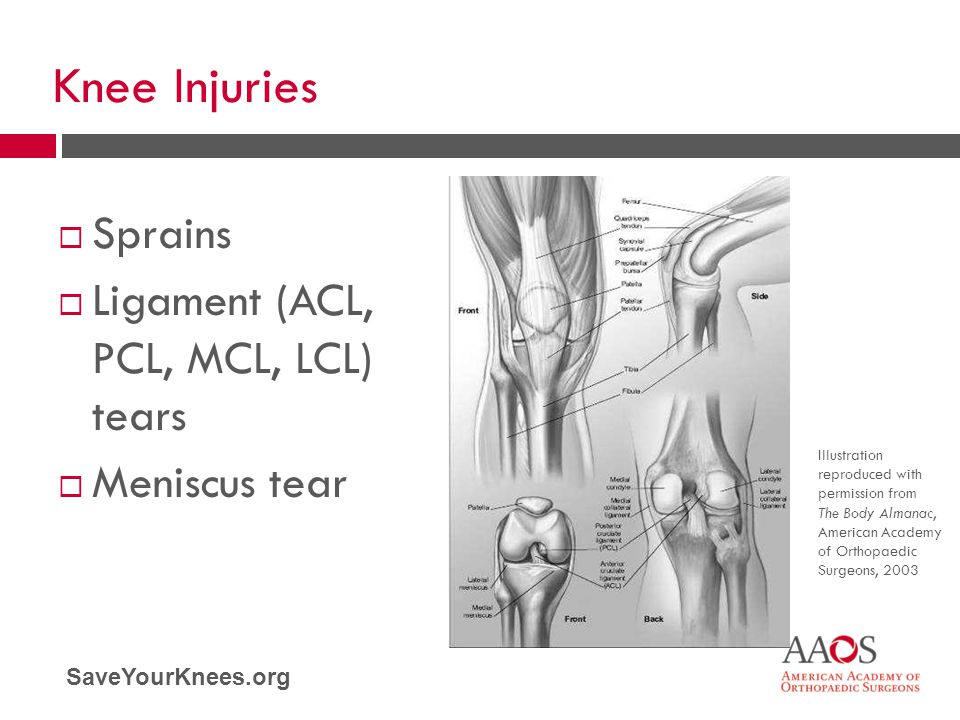 Knee Injuries Sprains Ligament (ACL, PCL, MCL, LCL) tears