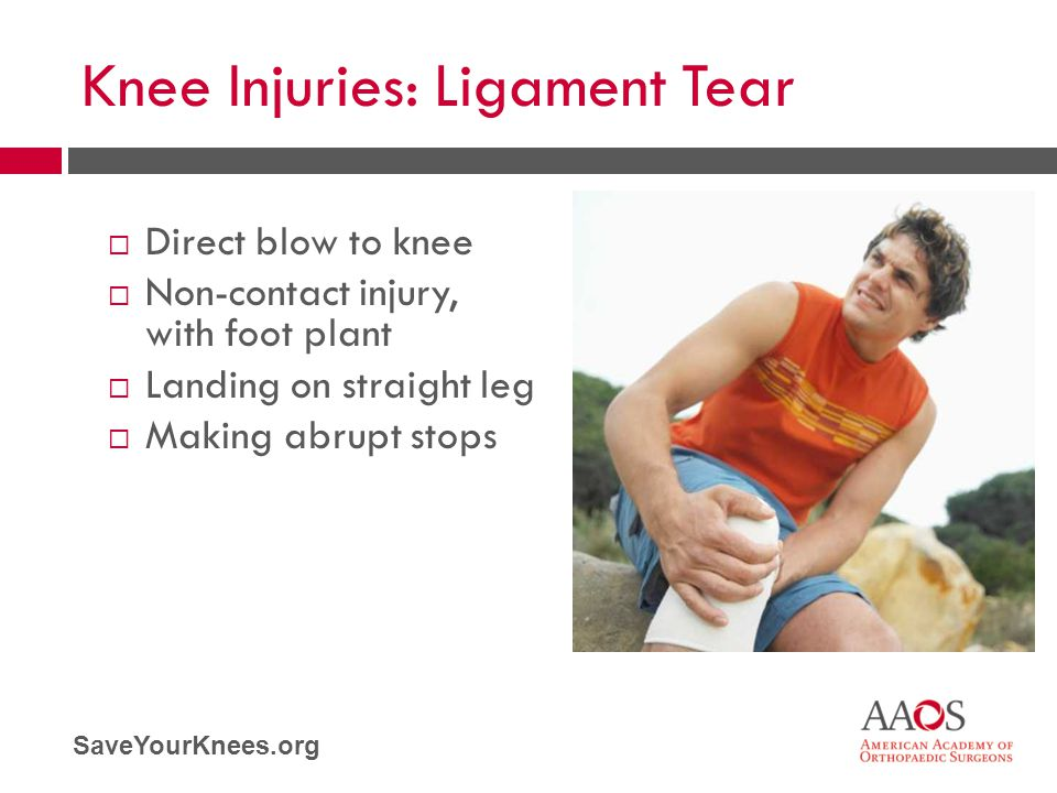 Knee Injuries: Ligament Tear