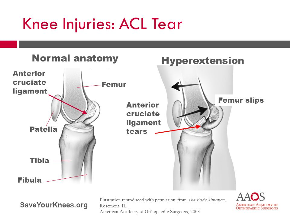 Knee Injuries: ACL Tear