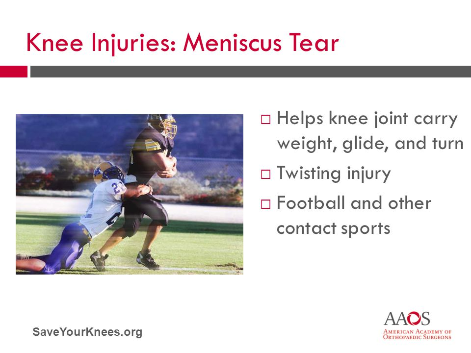 Knee Injuries: Meniscus Tear