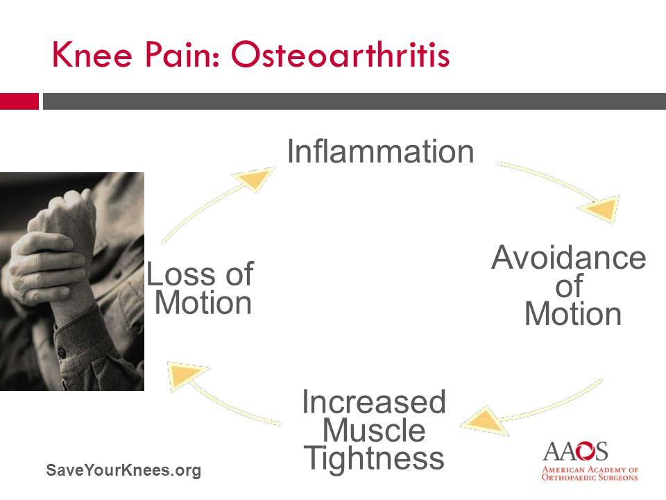 Knee Pain: Osteoarthritis