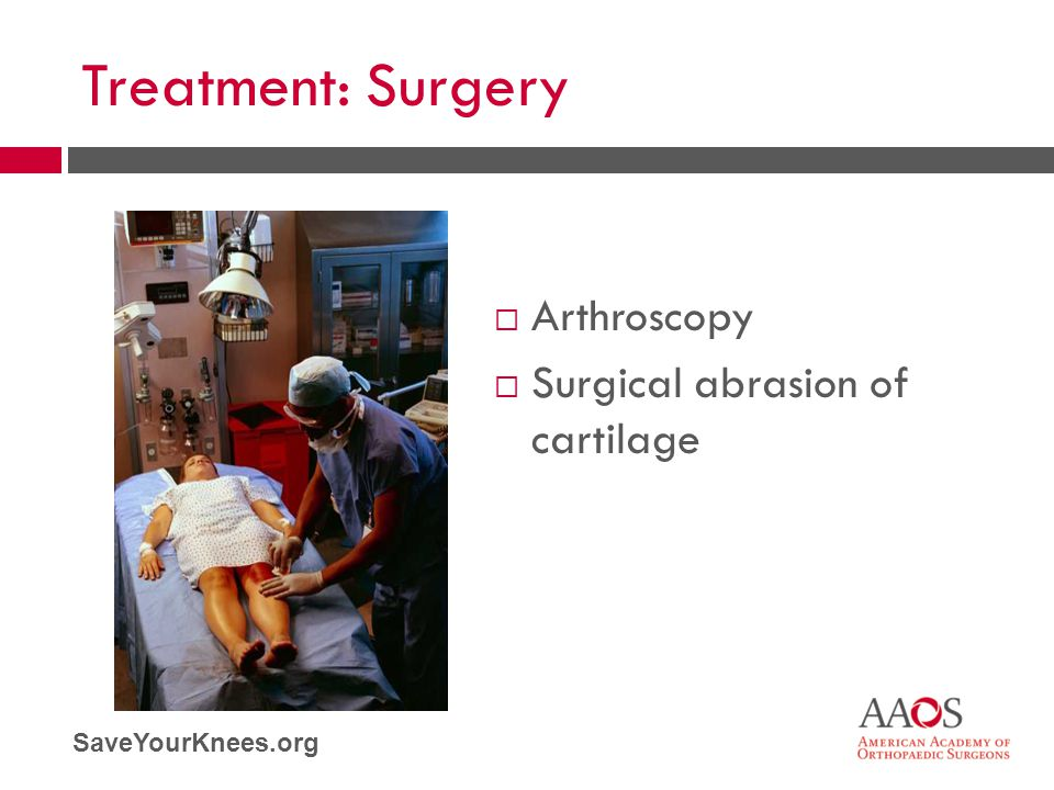 Treatment: Surgery Arthroscopy Surgical abrasion of cartilage