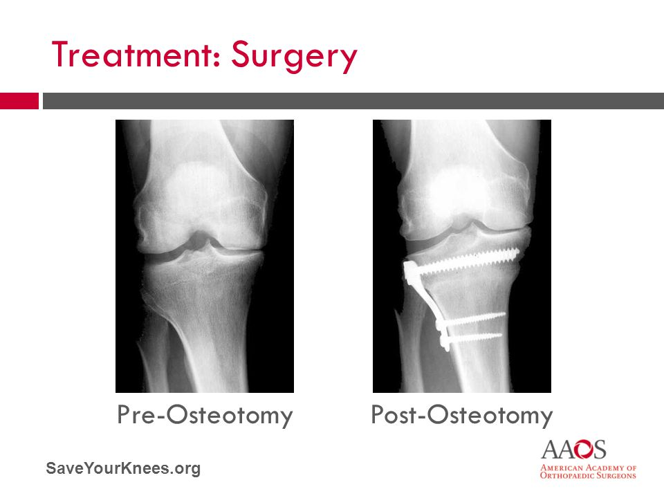 Treatment: Surgery Pre-Osteotomy Post-Osteotomy