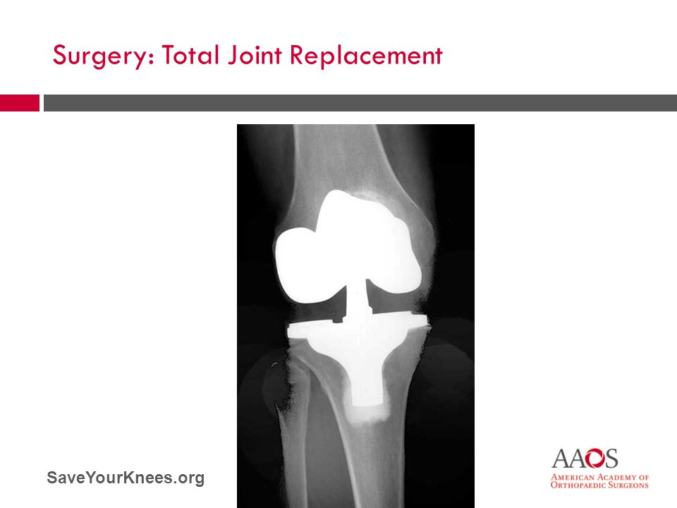 Surgery: Total Joint Replacement