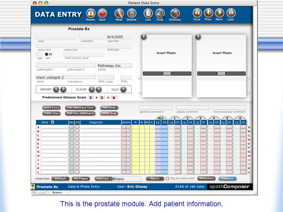 This is the prostate module. Add patient information.