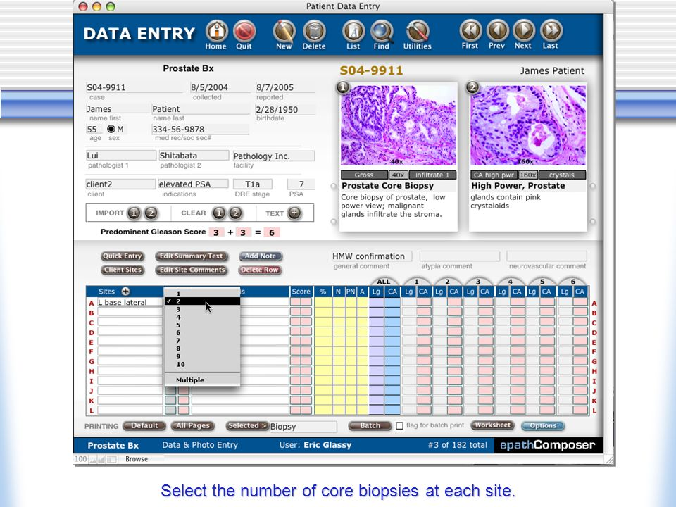 Select the number of core biopsies at each site.