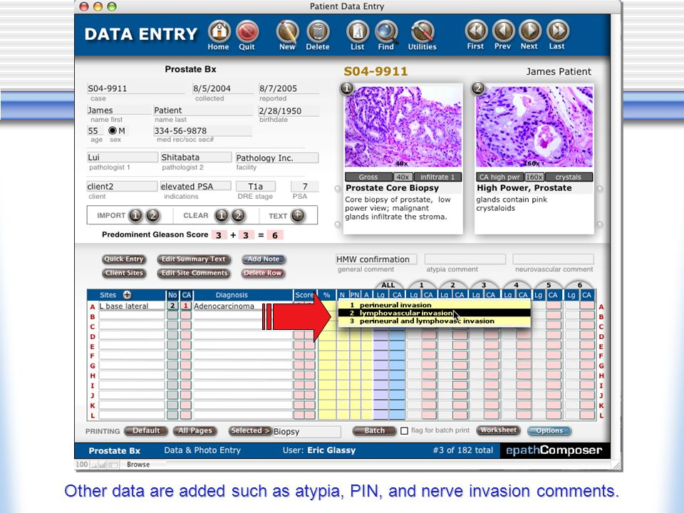 Other data are added such as atypia, PIN, and nerve invasion comments.