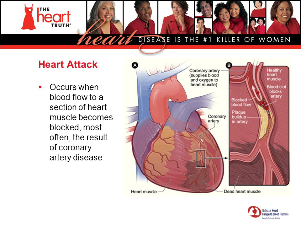 Heart Attack Occurs when blood flow to a section of heart muscle becomes blocked, most often, the result of coronary artery disease.