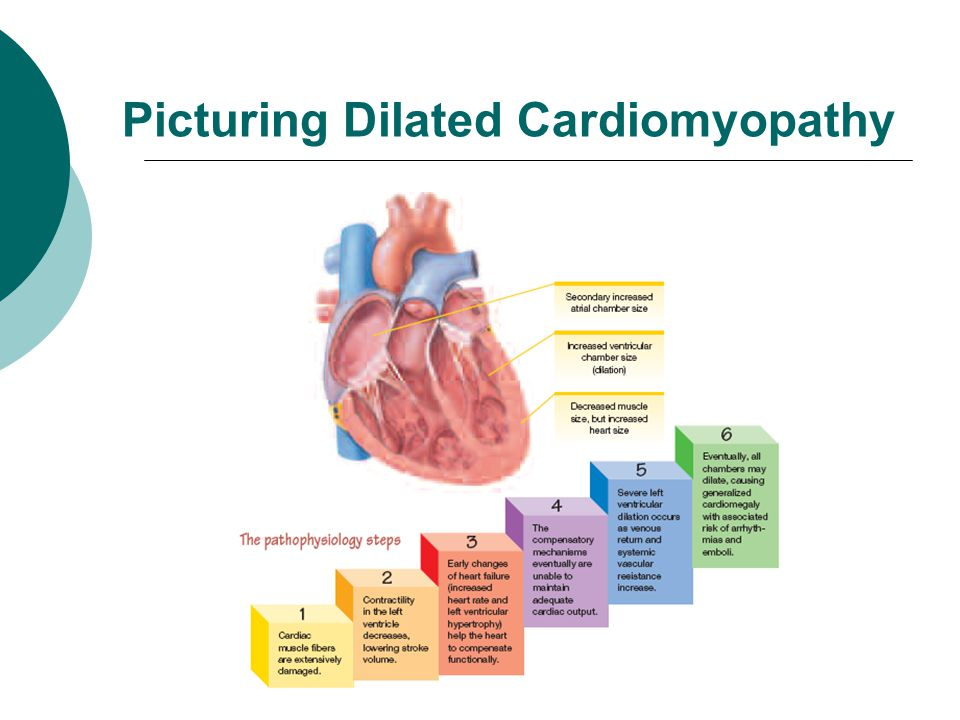 Picturing Dilated Cardiomyopathy