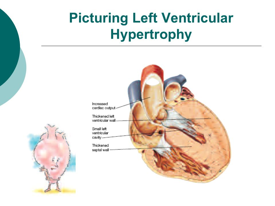Picturing Left Ventricular Hypertrophy