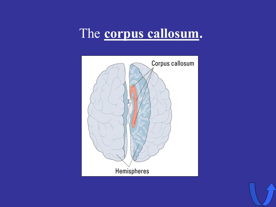 Eleanor M. Savko 4/5/2017 The corpus callosum.