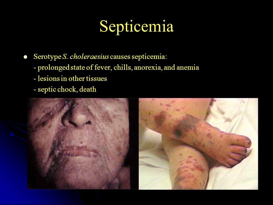 Septicemia Serotype S. choleraesius causes septicemia: