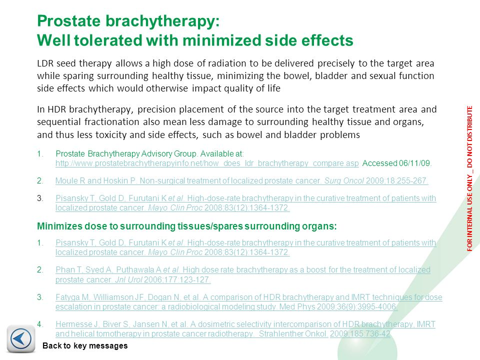 Prostate brachytherapy: Well tolerated with minimized side effects